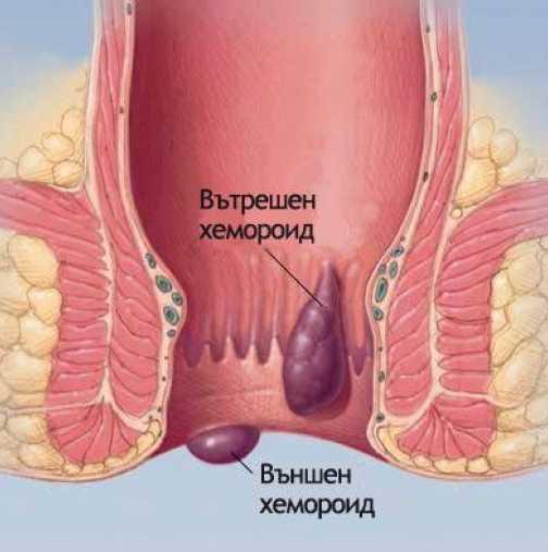Разширени вени и синини кървене